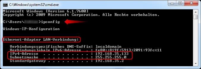 02-Windows-7-Vista-IP-Adresse-ipconfig-470.png